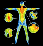 Why Thermography